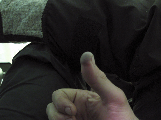 Injured thumb